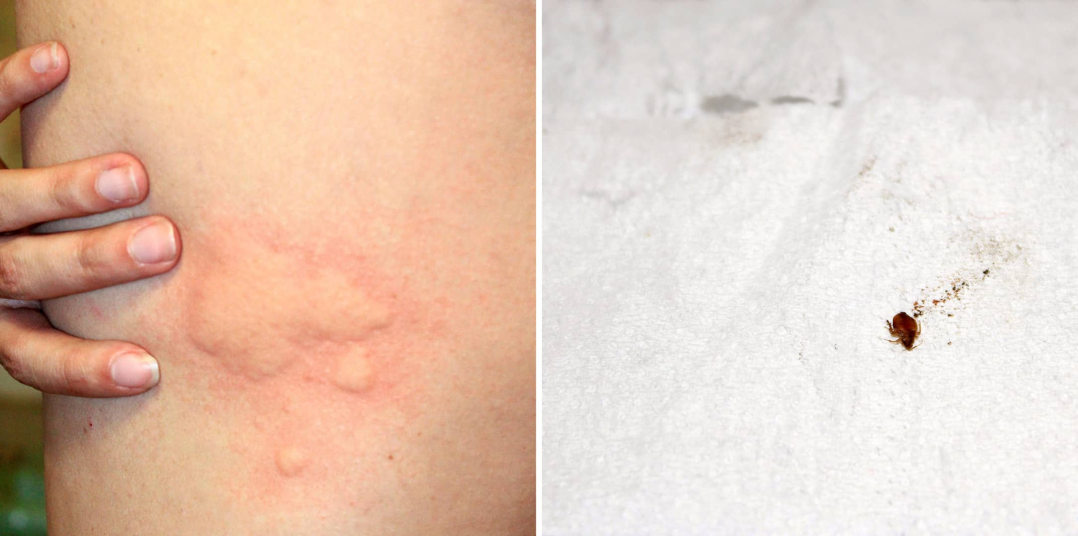 Bed Bug Symptoms Find Proof Debedbug