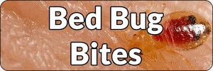 Bed Bug Bites Banner