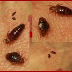 red bed bugs semi-flat and engorged