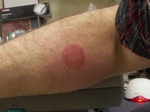 Severe bed bug bite on arm rashing
