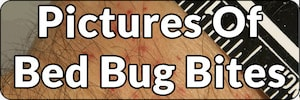pictures of bed bug bites on people page banner
