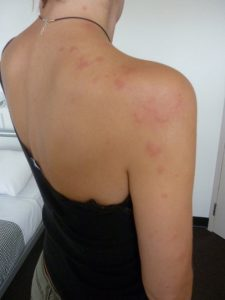 Bed bug bites neck back and arm