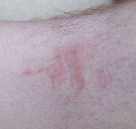 Bed bug bites leg rash